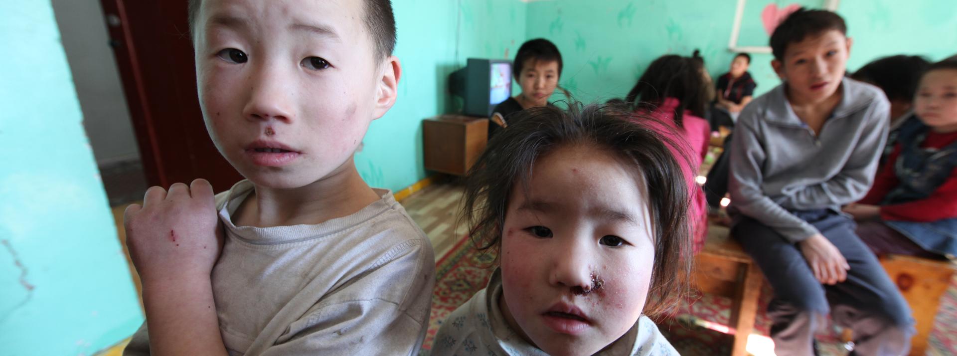 Strassenkinder in Ulaanbaatar